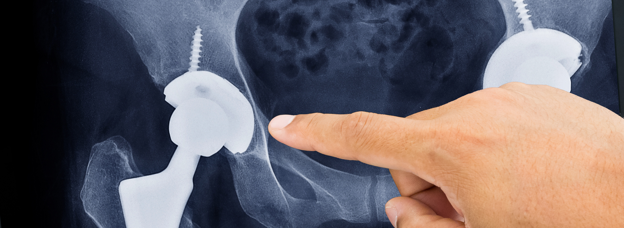 hand pointing at hip replacement