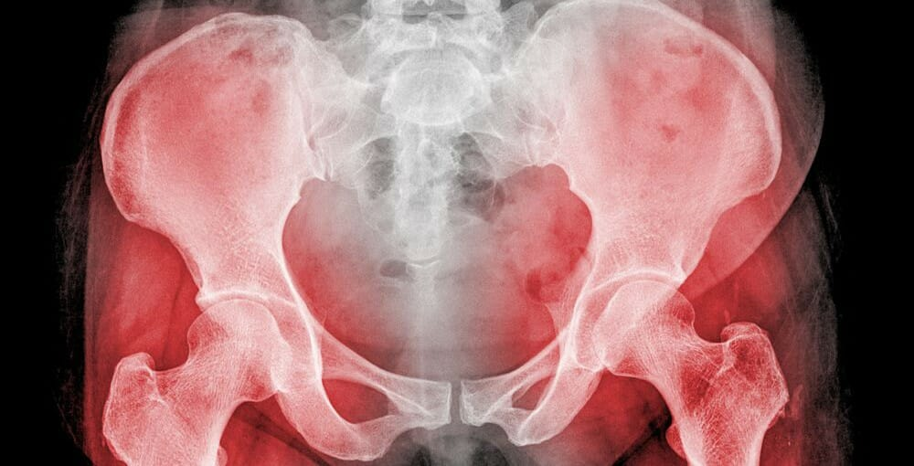 Hip replacement claims