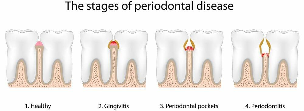 Periodontal disease (Gum disease)