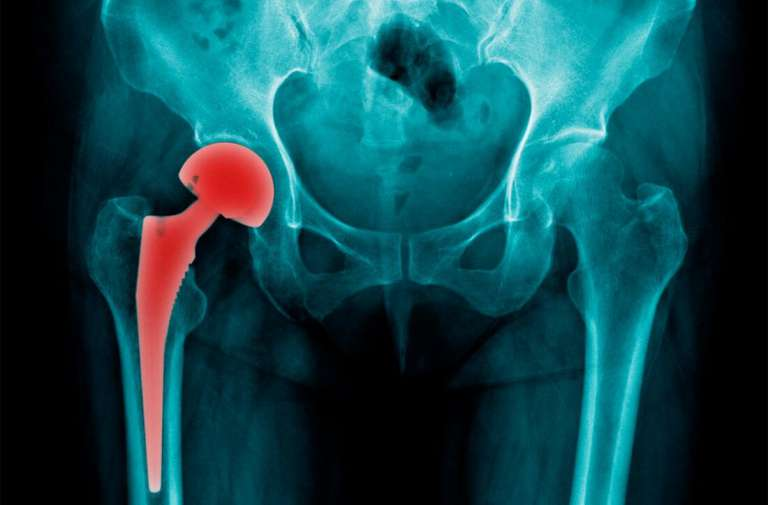 Hip Replacement Prosthesis Show in X-Ray