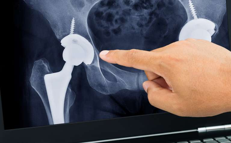 defective hip replacement