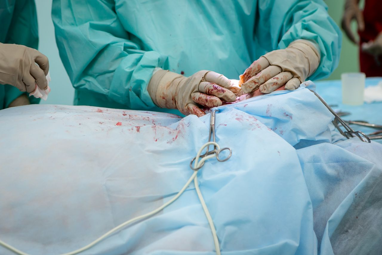 A photo of surgeon operating on a patient, to depict cosmetic surgery, in an article about Allergen Textured Breast Implants Recall.