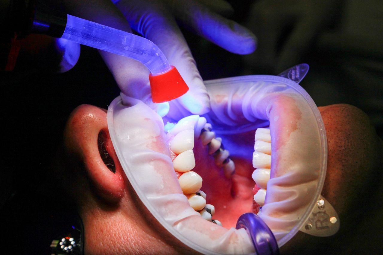 A Dentist checks teeth under UV light