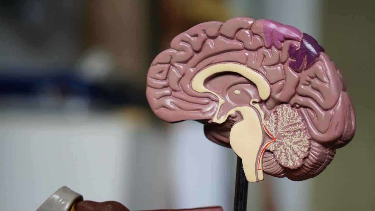 A photograph of a model brain, which is the the organ damaged by Hypoxic Ischemic Encephalopathy (HIE)
