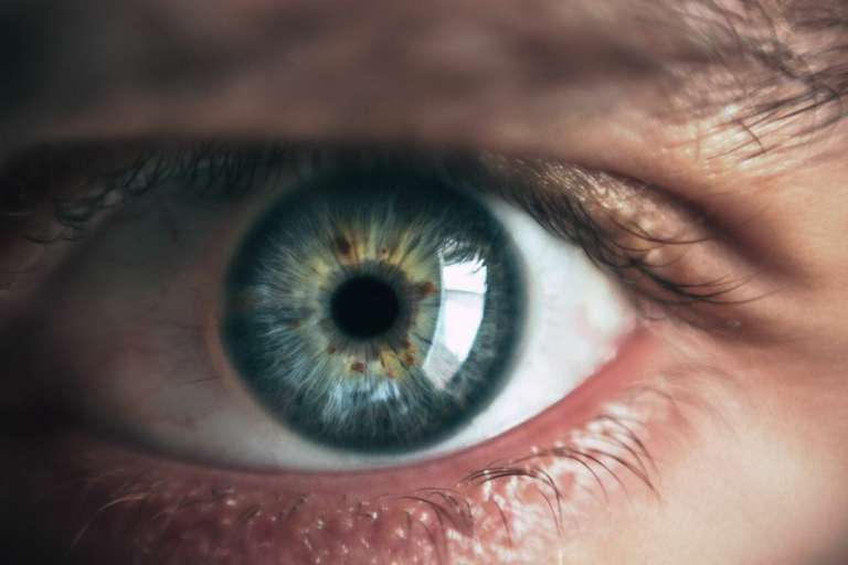 A close-up photograph of an eye. Cataracts are a condition which affect the eye.