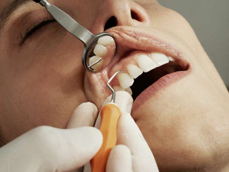 A photograph of a person having a dental check-up as a watchdog calls for the government to step in and save NHS dentistry from crisis